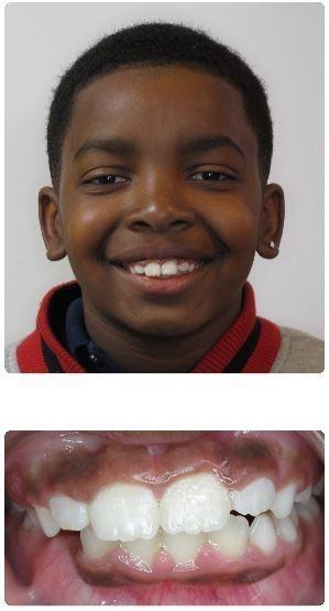 Two-Phase-Orthodontics-with-Extractions-After-Image