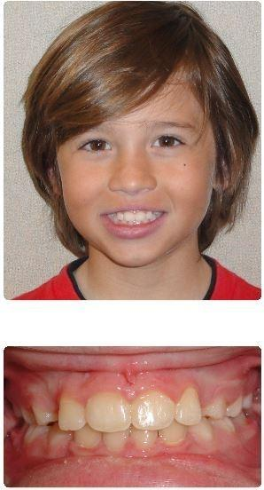 Two-Phase-Orthodontics-Crowding-After-Image