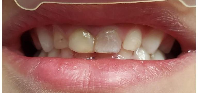 Dental-Fillings-Before-Image