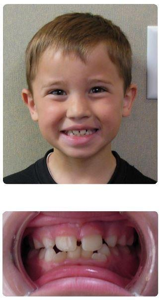 Two-Phase-Orthodontics-Crowding-Before-Image