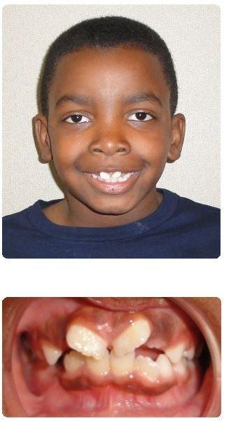 Two-Phase-Orthodontics-with-Extractions-Before-Image